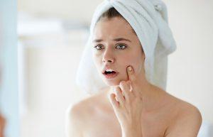 Ako sa starať o pokožku s akné v lete? Charakteristika, kozmetika & starostlivosť